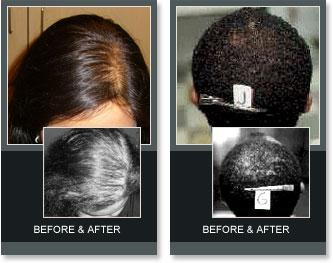 Laser Hair Therapy Before and After