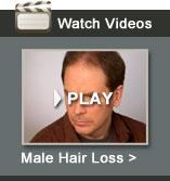 Watch Male Hair Loss Video