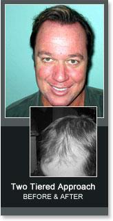MHN's Men's Two Tiered Approach Hair Loss Solution