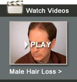 Men's Hair Loss Solutions Video