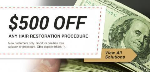 Get $500 Off Any Hair Loss Solution