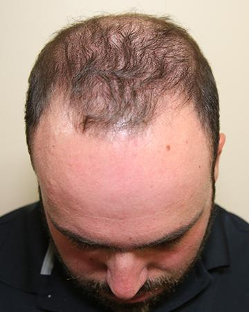 before after gallery mens gallery the 360 process 01 mens hair loss solutions before and after photo 02